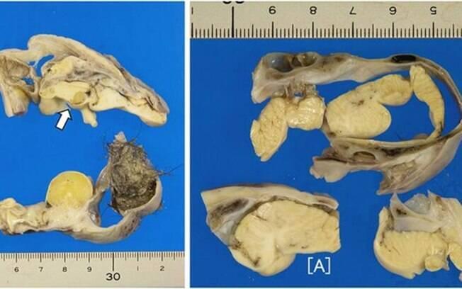 Imagens do tumor, que tinha pelos e uma estrutura em forma de cérebro de 3cm coberta por uma placa de osso craniano.