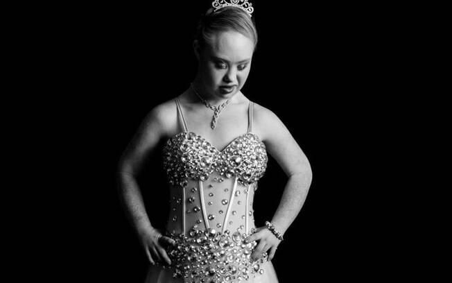 Os quilos a menos deram força para a australiana de 18 anos ir em busca do sonho de tornar modelo profissional. Foto: Reprodução