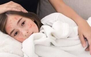 Fake news: 9 mitos sobre o sarampo nos quais você não deve acreditar