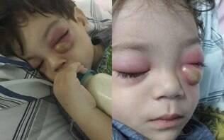Criança com sinusite contrai bactéria grave e fica com os olhos inchados