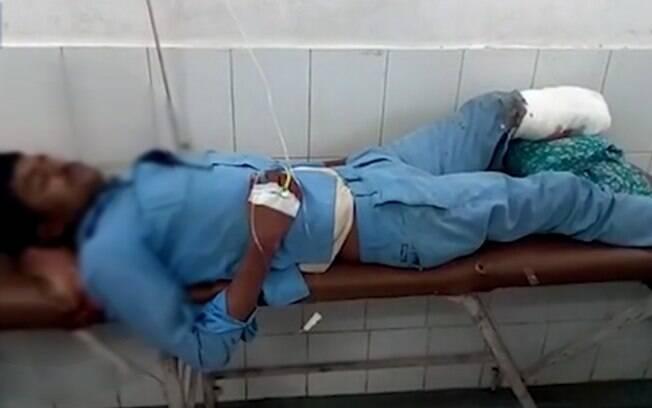 Acidente envolvendo um ônibus escolar deixou 25 crianças feridas  e causou a amputação do pé do indiano Ghanshyam