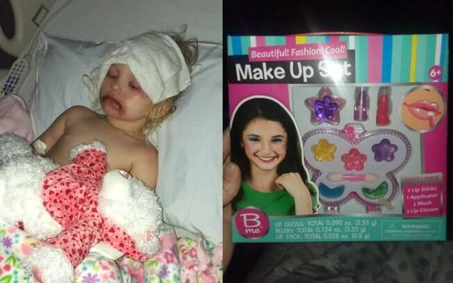Menina chegou a ser internada após passar maquiagem para crianças, e pais decidiram fazer alerta sobre os riscos