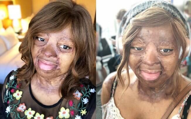 A americana Kechi Okwuchi ficou com cicatrizes em diversas partes do corpo após sobreviver a um acidente aéreo