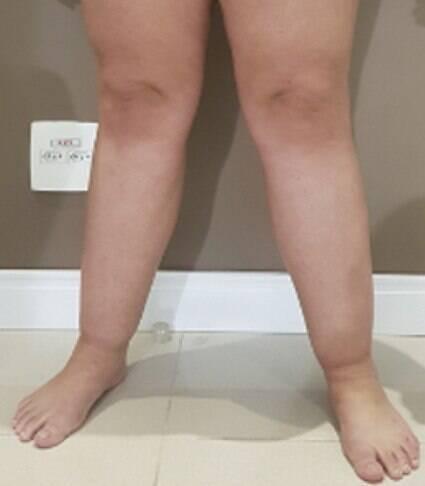 Doença mais comum em mulheres causa inchaço e dores