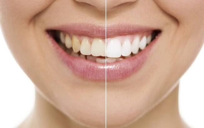 O clareamento dental é seguro quando feito no consultório ou em casa, desde que seja feito com supervisão de um dentista