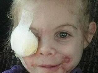 Em abril, menina perdeu um olho e sofreu lesões graves na face ao ser atacada por um pitbull