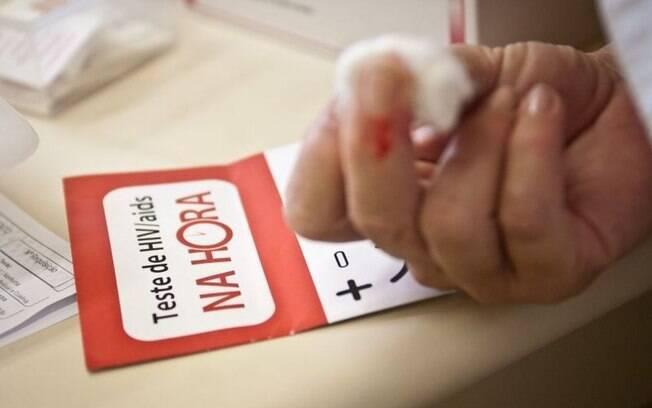 Novos testes para descobrir a aids foram aplicados no Brasil