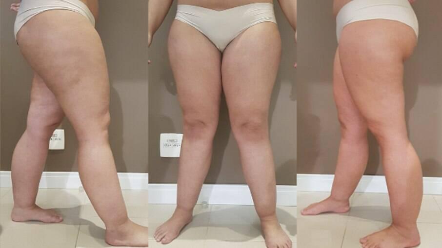 Lipedema é erroneamente relacionada à obesidade; entenda a doença