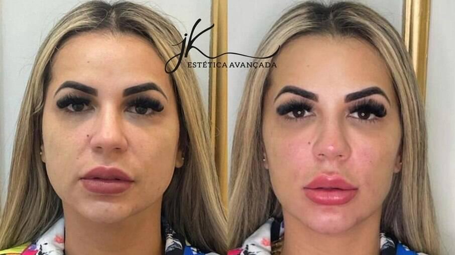 Antes e depois da harmonização facial de Deolane Bezerra