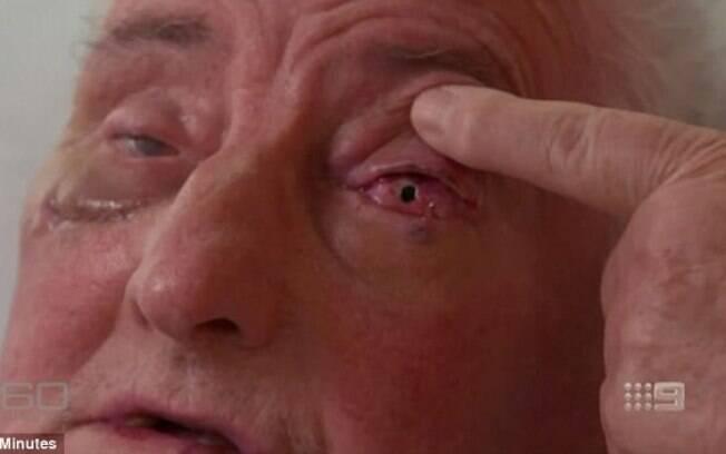 Cirurgia bizarra fez com que idoso tivesse visão recuperada após anos vendo vultos