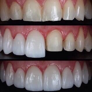 Lentes de contato dental: fotos de boca antes, durante e depois do procedimento estético