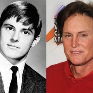 Em 2013, Bruce Jenner chegou a fazer uma cirurgia para diminuir o seu Pomo de Adão