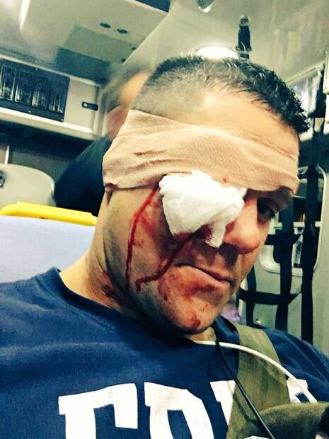 Lutador Eddie Edwards quase perdeu o olho direito depois de ser atingido por um taco de beisebol