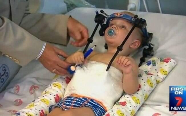 Bebê sobrevive após crânio se separar da coluna