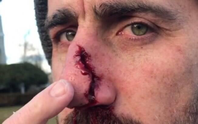 Andrew Gesler quase perdeu o nariz após acidente
