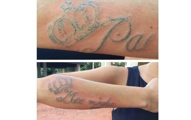 Bárbara Evans mostrou o resultado da remoção de suas tatuagens
