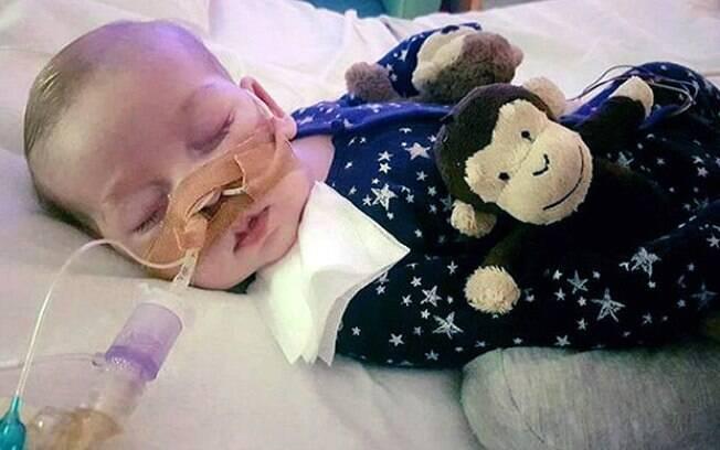 Charlie Gard, o bebê britânico que sofre de doença rara e é incapaz de se mover, comer e respirar sozinho