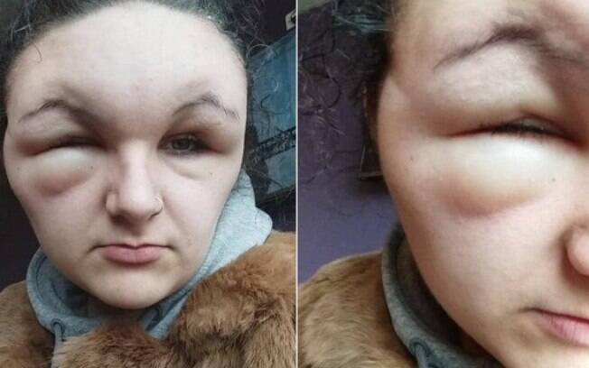 Georgina Paraskeva, 18 anos, teve uma reação alérgica a uma tintura de cabelo que usou para colorir os fios