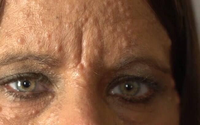 Avó e mãe de Libby também tinham neurofibromatose, fazendo a americana se preocupar com a aparência desde pequena