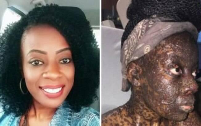 Após ingerir os antibióticos receitados pelos seus médicos, a mulher de 38 anos sofreu uma forte reação