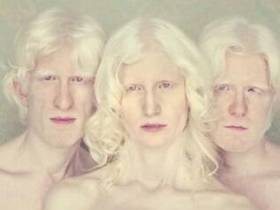 """Visibilidade. Para Gustavo Lacerda, os retratos do livro """"Albinos"""" colocam os personagens em evidência"""