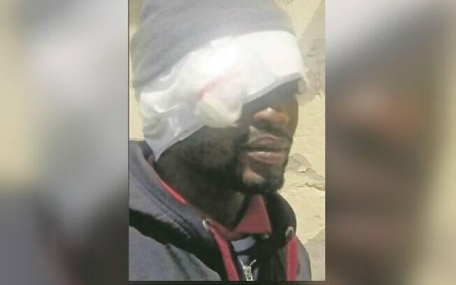 Mnombo Madyibi contou que sua mulher mordeu a orelha dele e tentou o sufocar com um ursinho de pelúcia