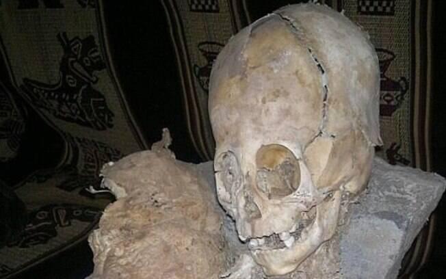 Para fazer 'crânio alien', os Collagua  prendiam tabuas de madeira nas cabeças dos bebês, modificando-as com o tempo