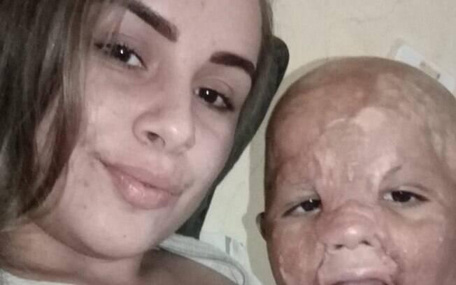 Menino teve 100% do rosto atingido por óleo quente em um acidente doméstico