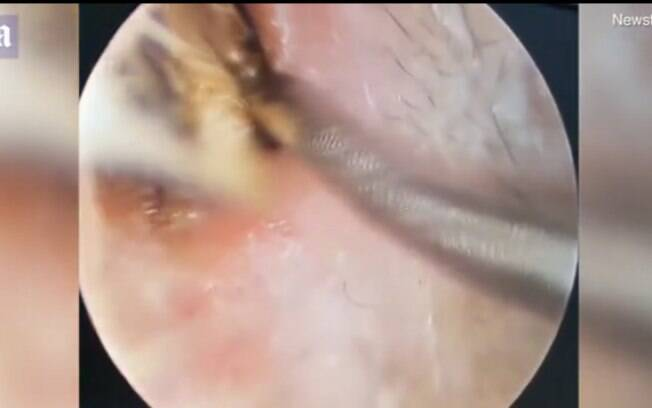 Médico usando equipamento para retirar a barata no ouvido