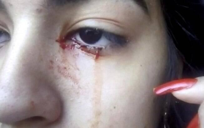 Adolescente de 15 anos começou a chorar sangue sem motivo aparente e médicos realizam exames para entender