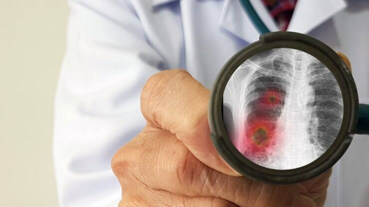 Sintomas iniciais da Covid-19 podem dizer se caso será grave, diz estudo – iG Saúde