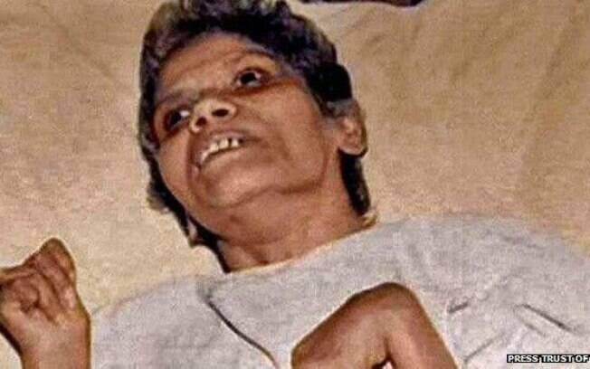 Médicos e enfermeiras do hospital onde Aruna Shanbaug ficou internada eram contra sua eutanásia