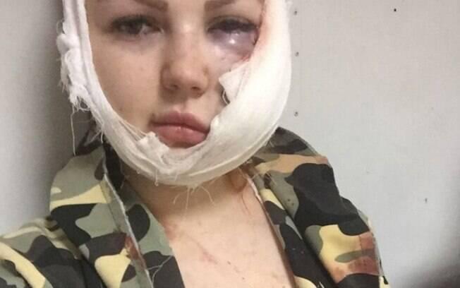 Irina Malysheva sofreu ferimentos graves durante briga em karaokê ao pedir para mulher desconhecida apagar filmagens