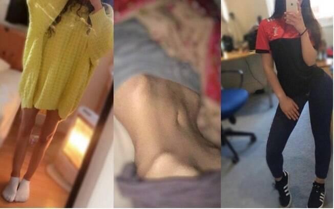 Hamna Amira foi diagnosticada com anorexia em 2017 e, desde então, conseguiu engordar de cerca de 39 para 45 quilos