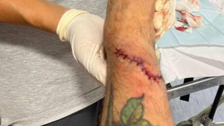 Foram necessários 15 pontos para suturar a lesão