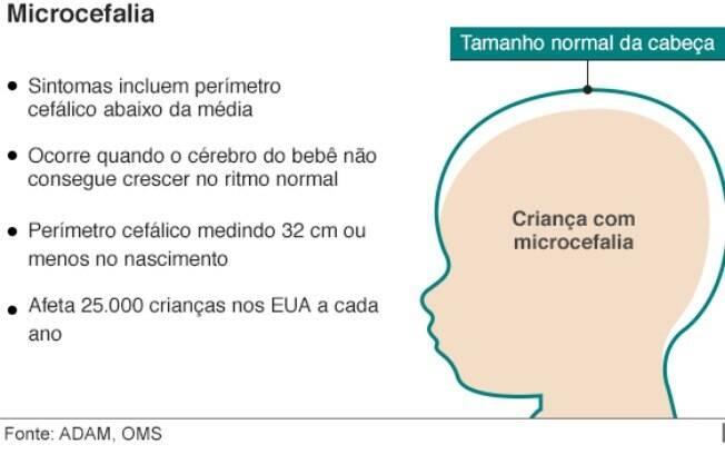 Microcefalia é quando bebês nascem com perímetro cefálico medindo 32 cm ou menos