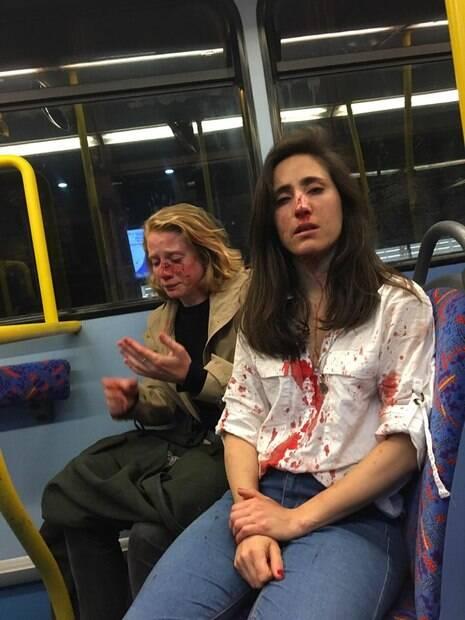 Vítimas de ataque sentadas no ônibus ensanguentadas