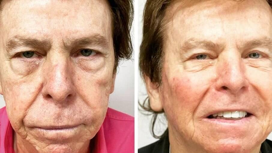 Nelson Rubens mostra resultado de harmonização facial