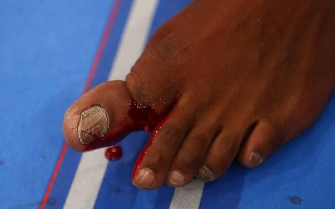 Jon Jones mostra a fratura no dedo do pé após  a luta