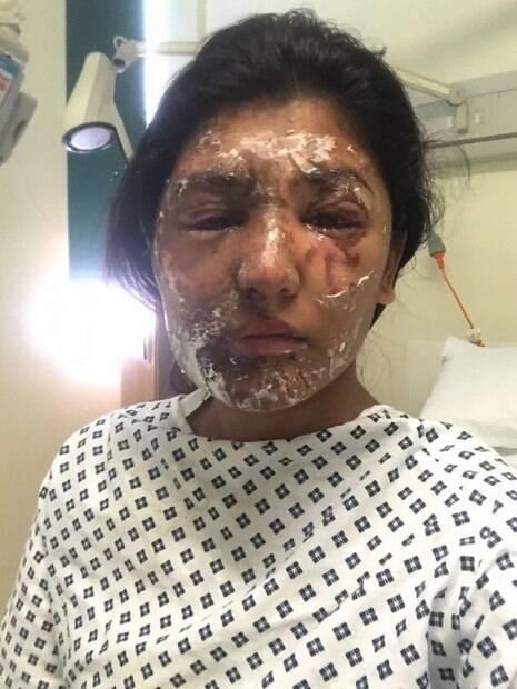 A jovem sofreu o ataque em seu aniversário de 21 anos