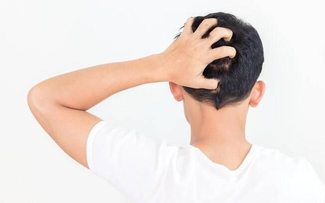Crianças procuraram a Fiocruz para tratar outro problema, e foram diagnosticadas com o fungo na cabeça