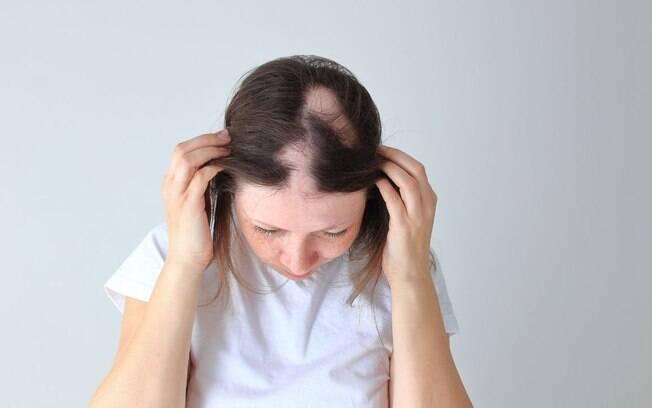 Queda de cabelo pode ser sinal de doença