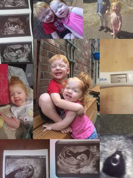 Montagem feita com imagens dos filhos de Kerry e o ultrassom do futuro filho
