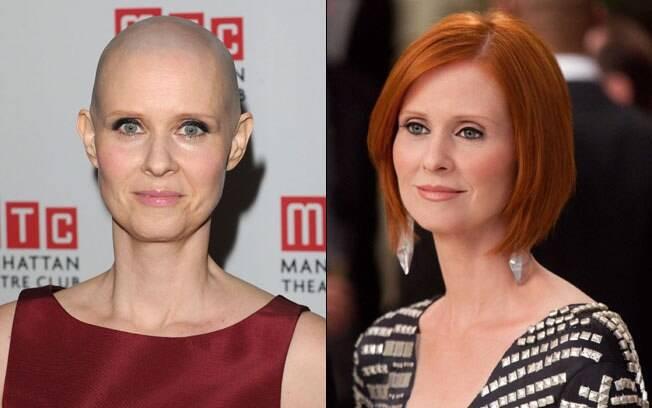 Cynthia Nixon: atualmente careca e com os cabelos ruivos de Miranda, em