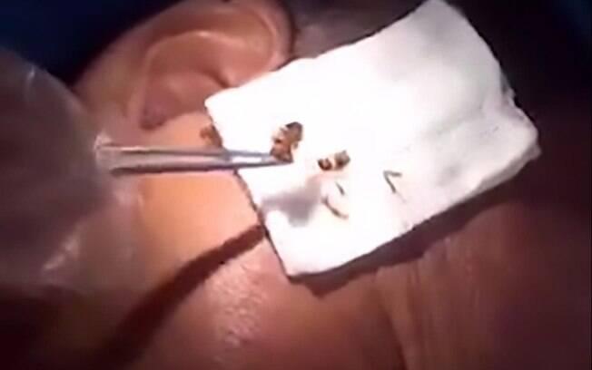 Chinês de 52 anos afirmou ter tentado tirar a barata de dentro dele durante 6 horas, decidindo ir atrás de ajuda médica