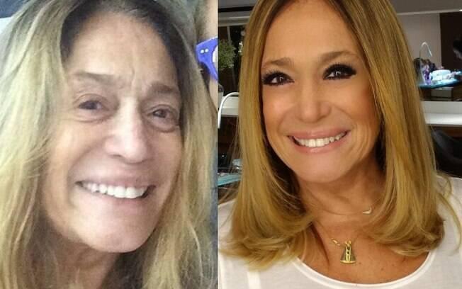 Susana Vieira posou faz parte da lista de famosas sem maquiagem