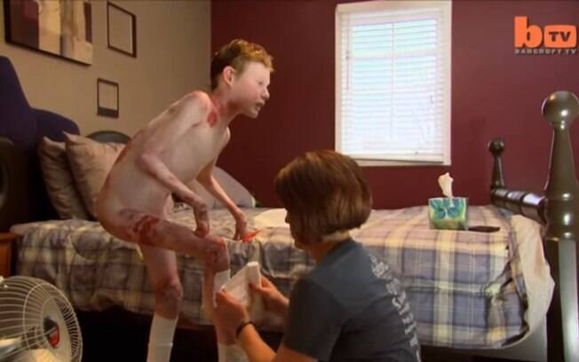 Em um documentário, o jovem compartilhou sua rotina dolorosa e alertou sobre a epidermólise bolhosa