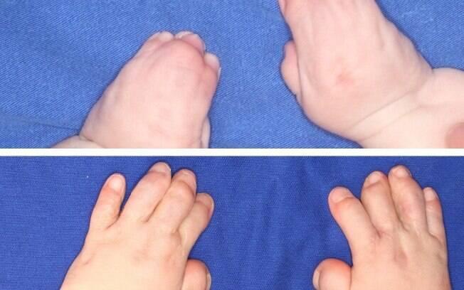 Montagem mostra as mãos de Isadora antes da cirurgia e depois do procedimento, com os cinco dedos em cada mão