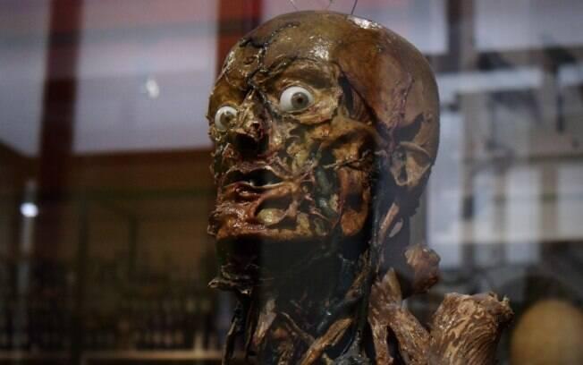 Para visitar Museu de Anatomia, na França, é preciso ter estômago