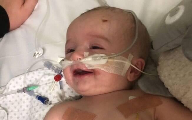 O bebê Labuschagne ficou sete meses em coma e agora precisará passar por uma cirurgia no coração